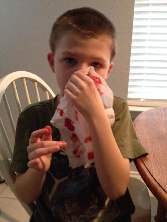 nosebleed2
